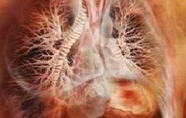 Mắc sai lầm khi ăn uống, cháu bé 5 tuổi bị sán làm tổn thương cả gan và phổi